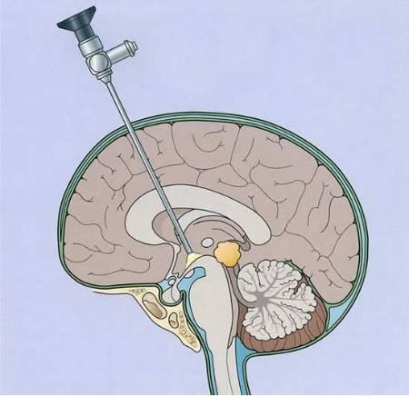 Cirugía con el endoscopio cerebral