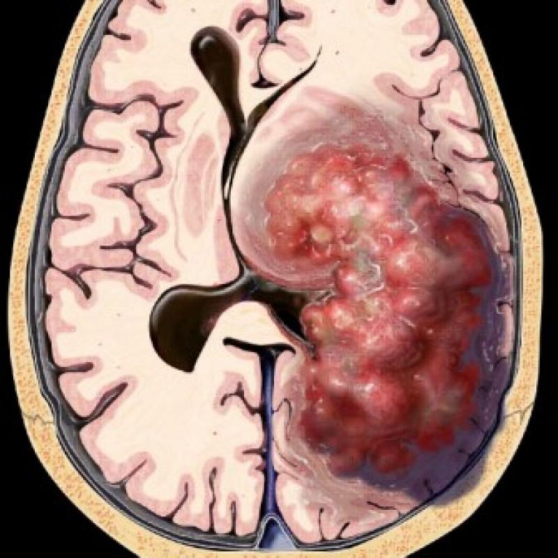 Neurocirugía menos invasiva